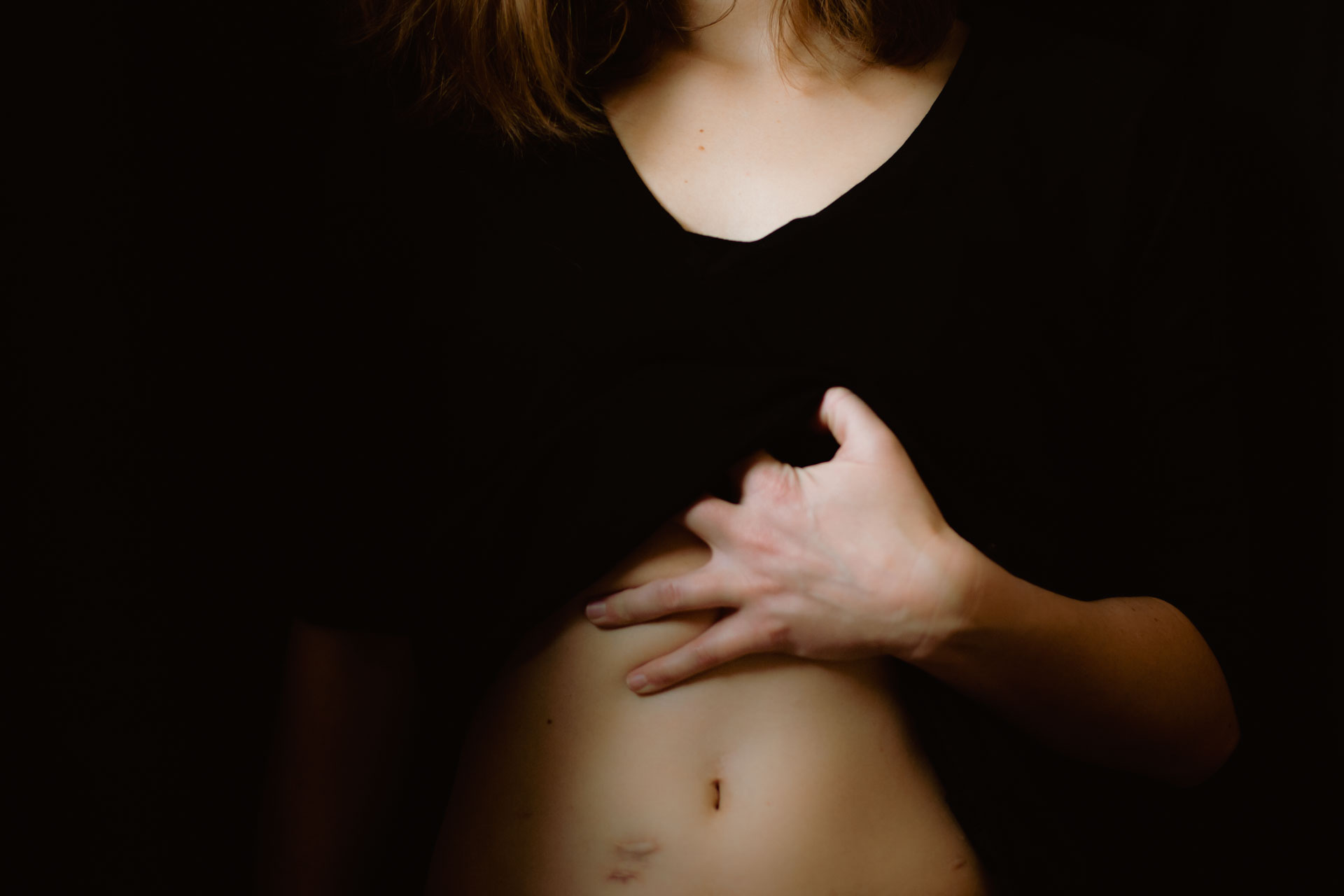 Image of woman lifting up her shirt to show her abdominal scars from ulcerative colitis (my UC story).